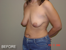 breast implants before 2