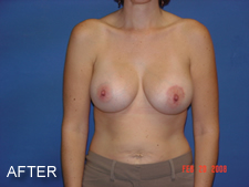 breast implants fort myers