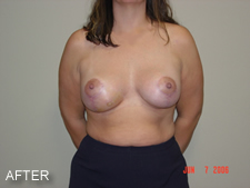 breast implants after 1