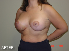 breast implants after 2