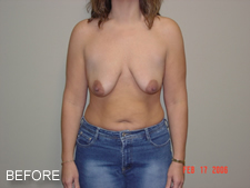 breast implants before 1