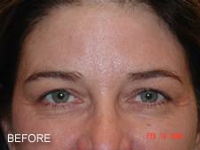 browlift with eyelift before