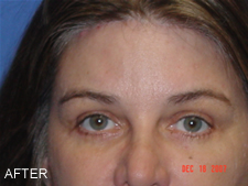 browlift with eyelift after