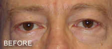 eyelid surgery before