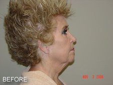 Facelift Photo Before