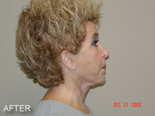 Facelift Photo After