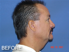 facelift with browlift