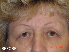 Browlift Before