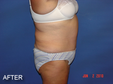 Tummy Tuck Surgery