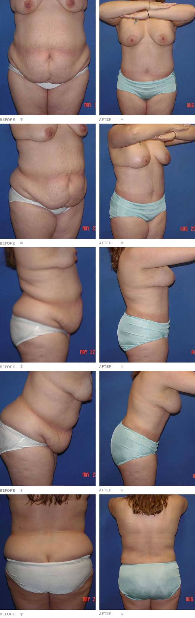 Abdominoplasty with Liposuction and Breast Augmentation