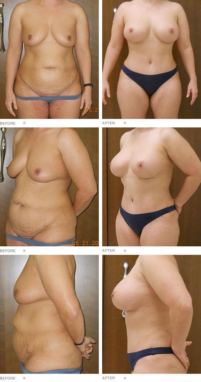 Breast Augmentation, Liposuction, Abdominoplasty: 45 years old