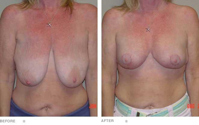 Mastopexy with Implants
