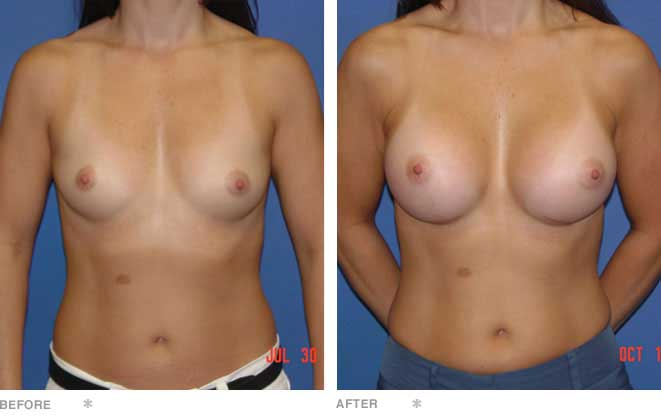 Breast Augmentation; 41 years old, A to C