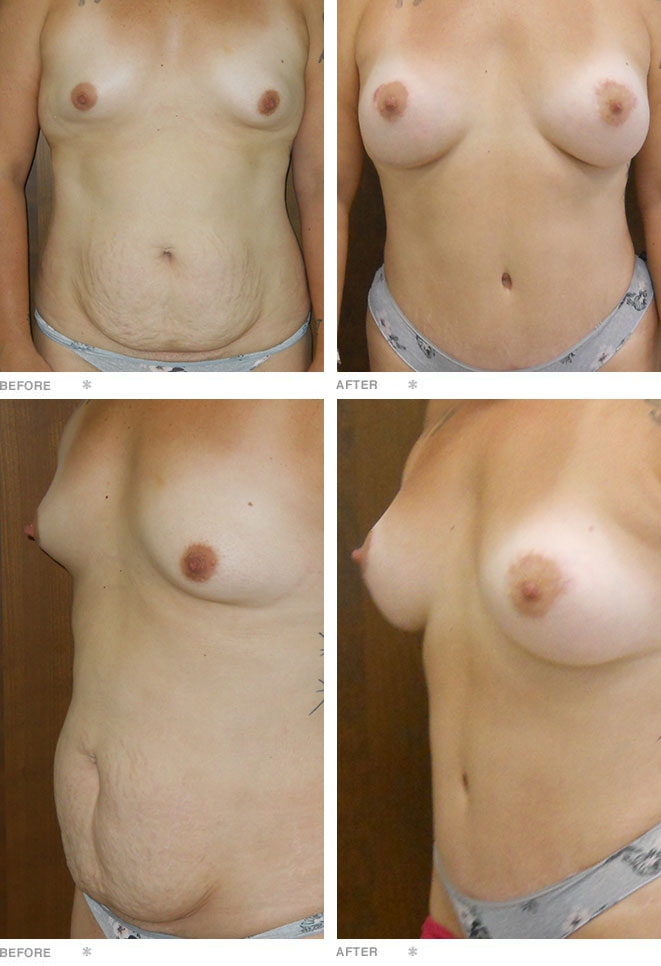 Abdominoplasty, Breast Augmentation, and Breast Lift