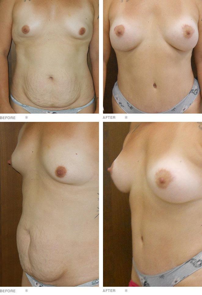 Abdominoplasty, Breast Augmentation, and Breast Lift