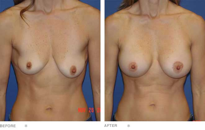 Breast Lift; 43 years old