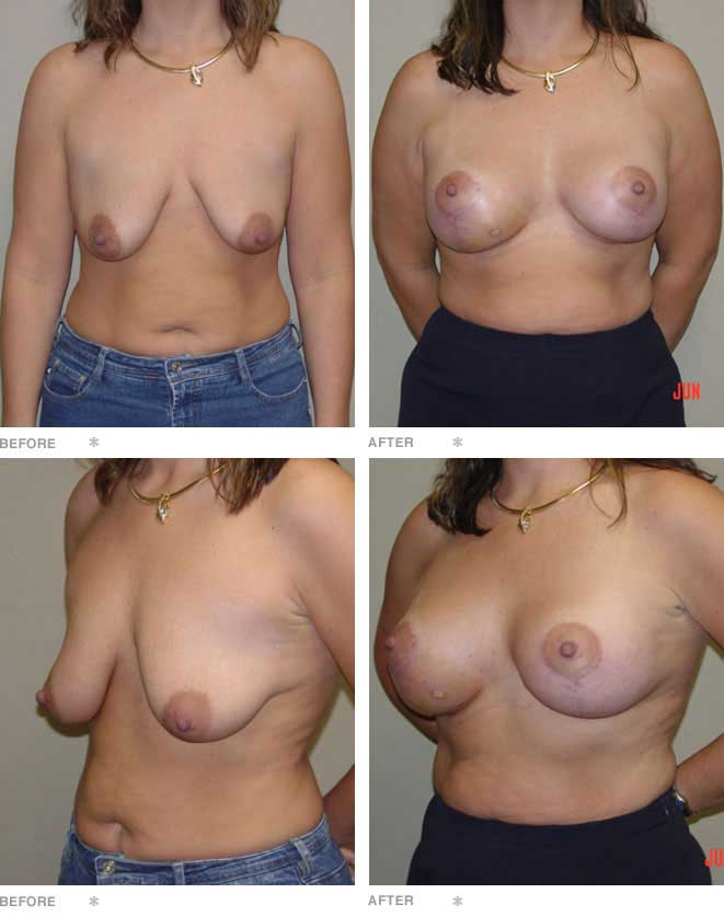 Breast Lift with Adjustable Implants