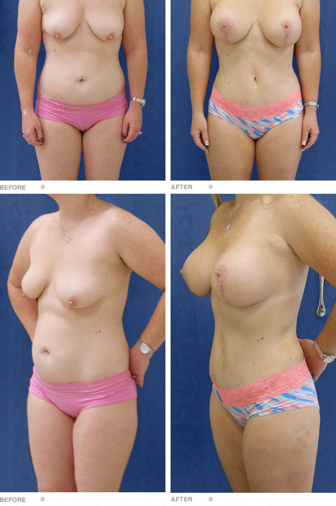 Breast Augmentation, Breast Lift & Abdominoplasty; 32 years old