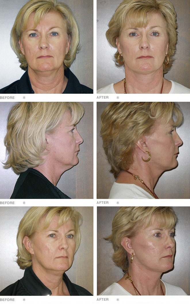 Facelift, Fat transfer, Upper & Lower Lid Blepharoplasties, Browlift