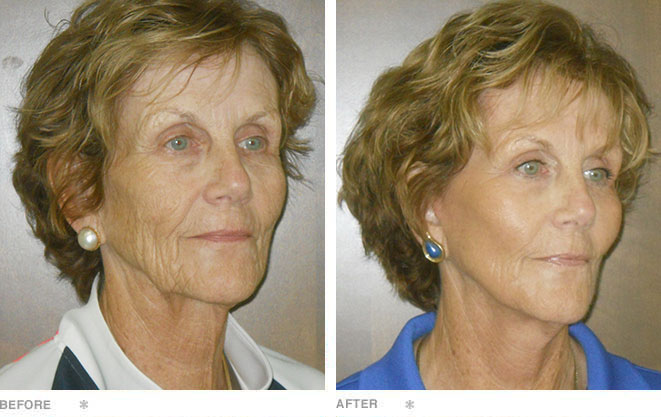 Facelift, Fat Transfers, and Lower Lid Blepharoplasty