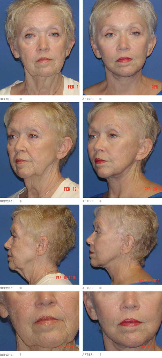 Facelift, Browlift, and Lower Lid Blepharoplasty