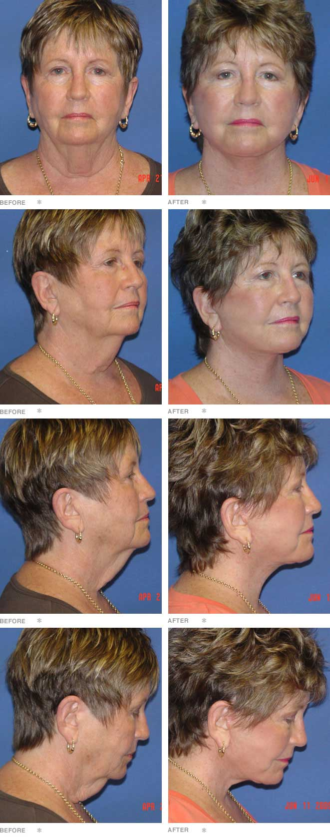 Facelift / Necklift; 71 years old