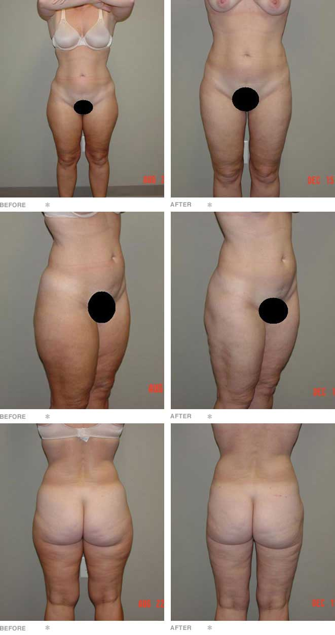 Liposuction of the Thighs and Knees