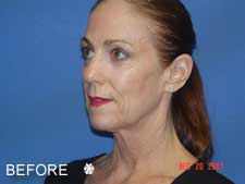 Complete Facial Rejuvenation