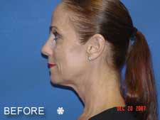 Complete Facial Rejuvenation